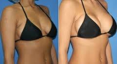 promo 5 cremas up size aumento busto senos pueraria mirifica