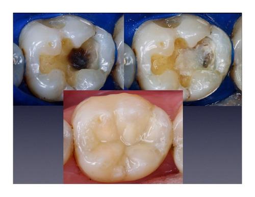 promocion !!!odontologo limpieza, estetica y cirugia dental