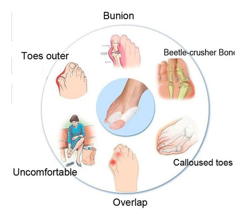 protector de dedo para juanetes (par)