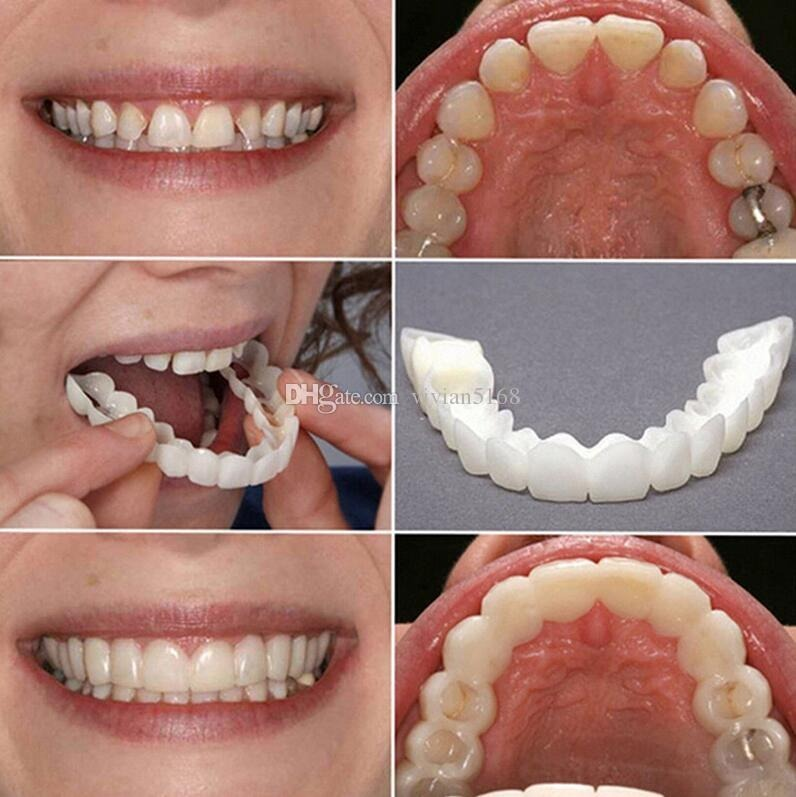 ebf6f74f9710 Prótese Dentária Sorriso Perfeito Entrega Rápida - R$ 135,00 em ...