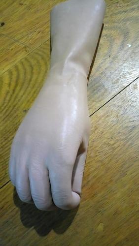 protesis brazo mano becker amputado