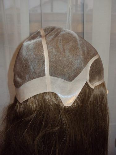 protesis capilar 100% implantada en cabello humano