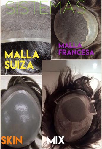 protesis capilares solución calvicie pérdida cabello