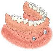 prótesis completa fijada por implantes