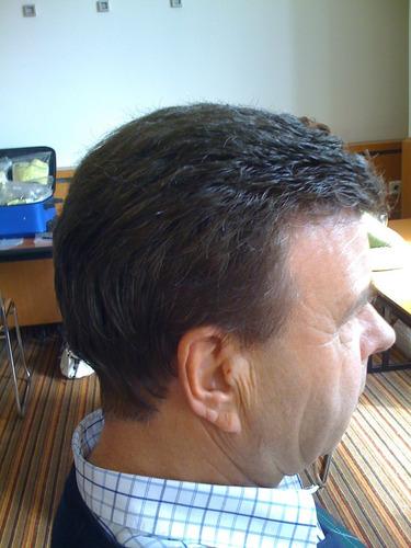 prótesis de cabello indetectables.