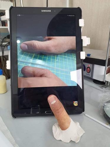 prótesis de dedo