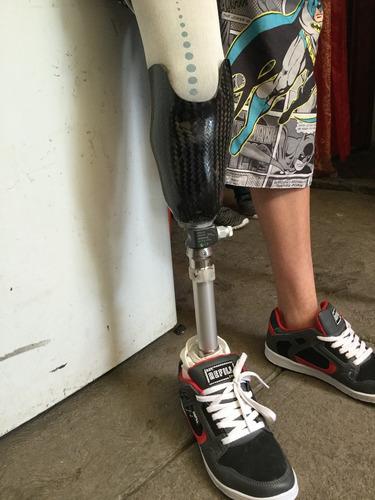 protesis de pierna
