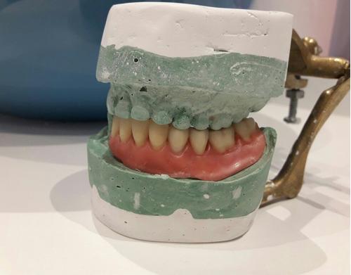 protesis dental acrilico