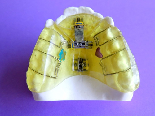 prótesis dental / completa o parcial / placas de ortodoncia