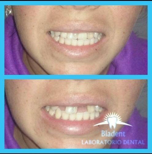 prótesis dental inmediatamente