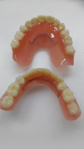 prótesis dentales acrílicas 2 a precio de una