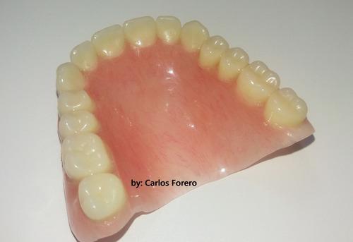 prótesis dentales, cajas de dientes, puentes removibles