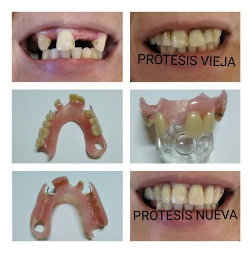 prótesis dentales - dentista - placas contencion y bruxismo