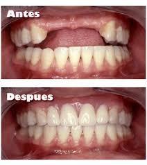 protesis dentales desde $30.000.-