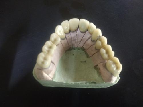 prótesis dentales, protesista dental, prótesis fijas