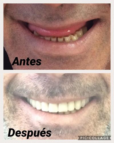 prótesis dentales provisorios reparaciones en el acto!