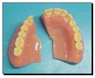 prótesis dentales quito reparaciones flexible y mucho mas