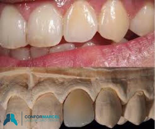 prótesis dentales removibles y fijas