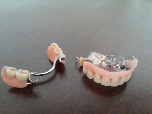 prótesis dentales y reparaciones a domicilio