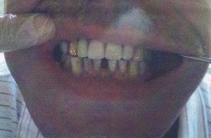 prótesis flexibles implantes dentales