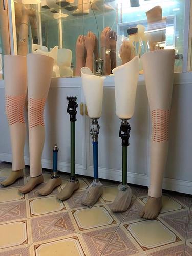 prótesis ortopédica para pierna por encima de rodilla