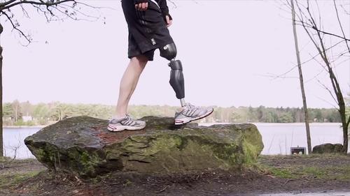 prótesis pierna ortopédica amputación sobre o bajo rodilla