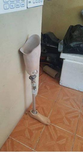 protesis y ortesis de la mejor calidad