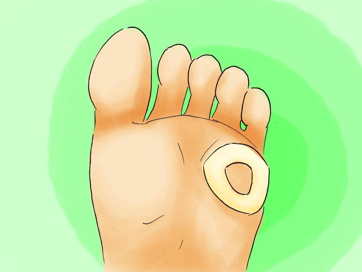 protetor pra calo almofada calosidade adesivo para calo pés. Carregando  zoom. 6b6e2ab205c91