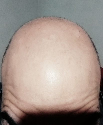 pulitura de cuero cabelludo