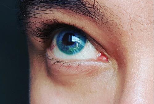 pupilente prisma premium color rosa y azul 6 en 1