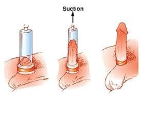 how to get erect quickly after ejaculation