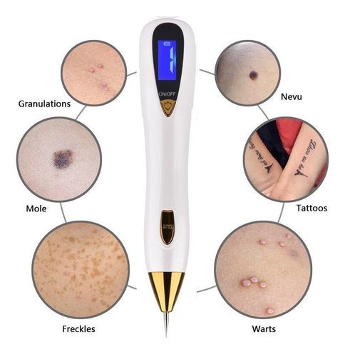 quita verrugas genitales pecas manchas tatuaje  30 puntas