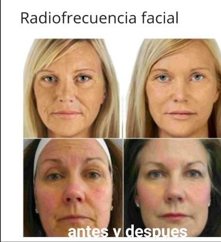 radiofrecuencia facial con luces led y microdermoabrasion
