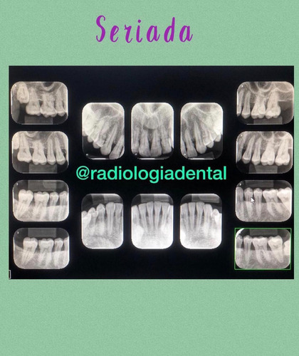 radiografía panorámica dental digital