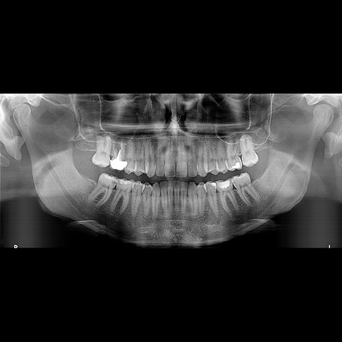 radiografía panorámica dental rx digital