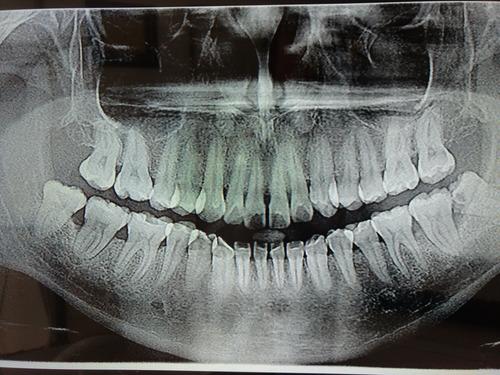 radiografía panorámica en adrogue