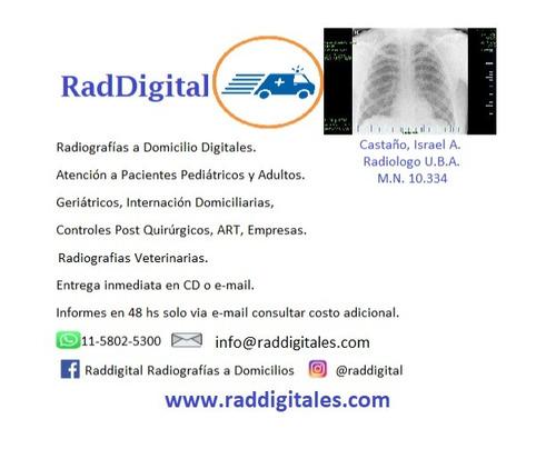 radiografías a domicilio digitales.