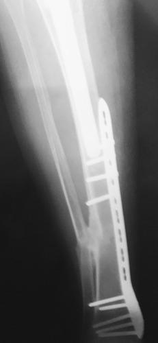 radiografias a domiclio