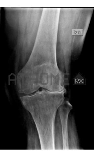 radiografias digitales a domicilio