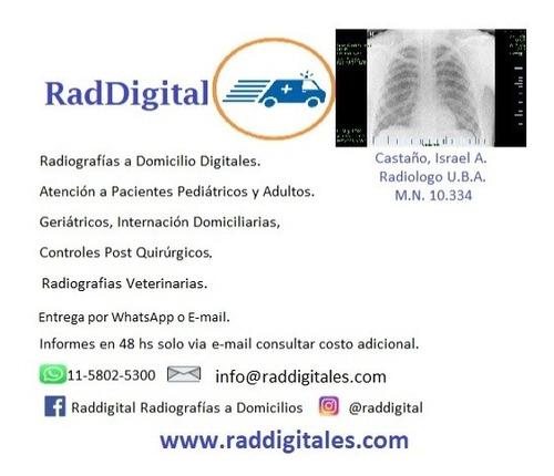 radiografías digitales a domicilio