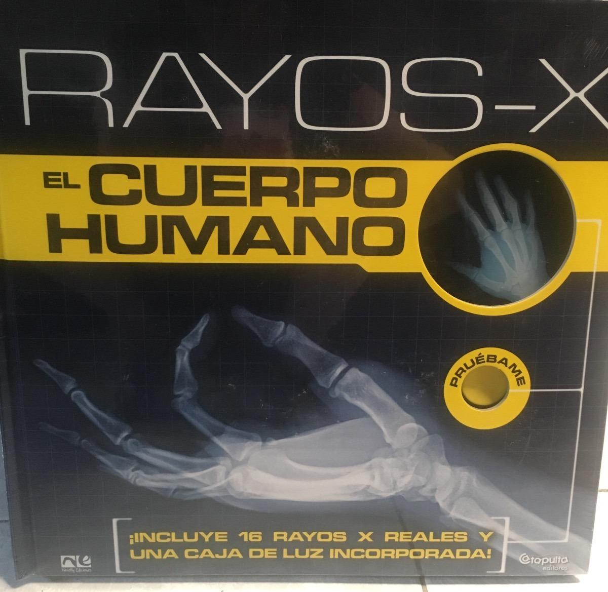 Rayos X Cuerpo Humano - 16 Placas Reales Y Caja De Luz - $ 990.00 en ...