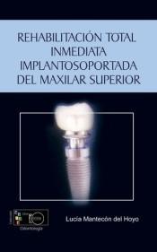 rehabilitación total inmediata implantosoportada del maxilar