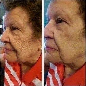 rejuvenescimento do rosto tirar rugas no creme poderoso fa1