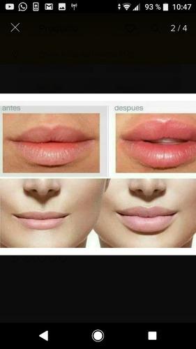 relleno y perfilado de labios con ácido hialuronico