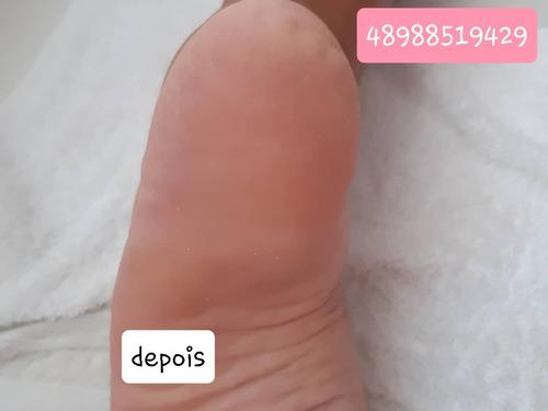 remoção de calos e rachaduras dos pés
