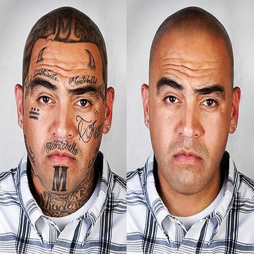 remova sua tatuagem de forma natural