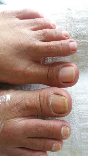 removedor de calos e rachaduras da lore pé