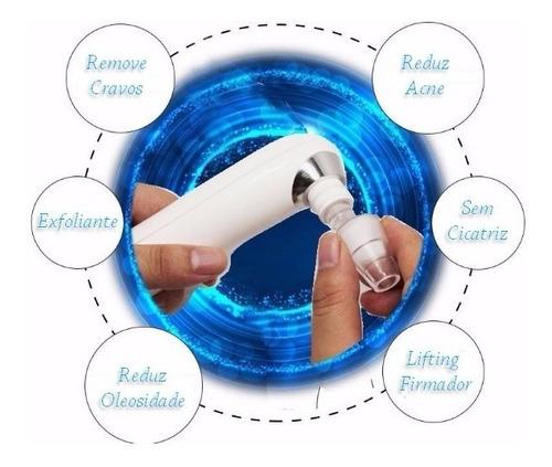 removedor de cravos espinhas vácuo elétrico limpeza de pele