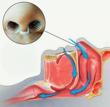 removedor extrator de terminais 18 pç + dilatador nasal