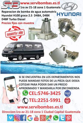 reparación de bomba de agua automotriz hyundai terracan 2.9